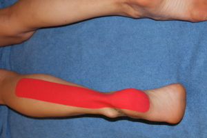 First step in achilles tendon kinesiology taping technique