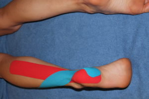 Second step in achilles tendon kinesiology taping technique